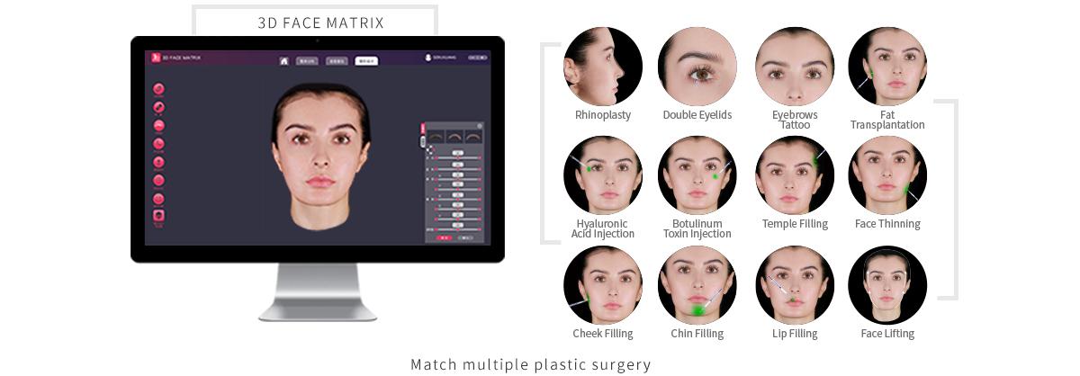 INOVA 3D-EX Pro